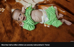 Reuters photo from BBC article on the current Yemen humanitarian crisis.
